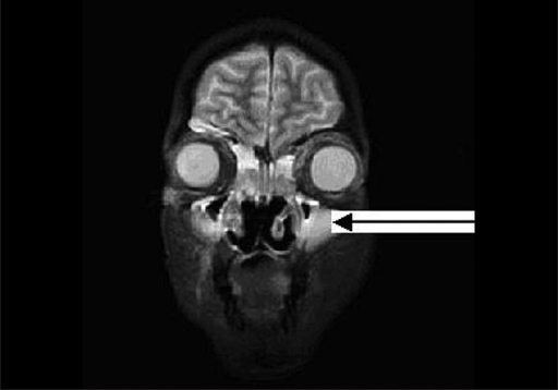 Mri Scan Showing Swollen Mucosa In The Bilateral Maxill