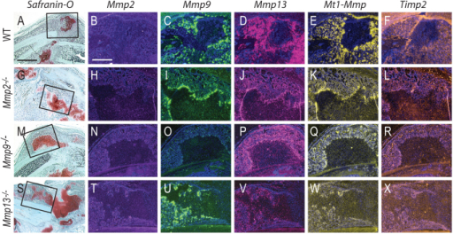 MMP and Timp2 expression patterns in wild-type, Mmp13–/–, Mmp9–/– and Mmp13–/– mice during fracture repair. (A–L) Lack of MMP2 does not affect expression of Mmp9, Mmp13 or Mt1-Mmp but decreases Timp2 expression. (M–R) Similarly, lack of MMP9 does not affect expression of Mmp2, Mmp13 or Mt1-Mmp but decreases Timp2 expression and (S–X) lack of MMP13 does not affect expression of Mmp2, Mmp9 or Mt1-Mmp but decreases Timp2 expression. Boxed areas in A,G,M and S are shown at higher magnification in the panels on their right. Scale bars: 1 mm (A,G,M,S); 500 μm (B–F,H–L,N–R,T–X).