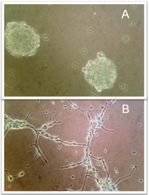 (A) Glioblastoma multiforme cells grown as neurospheres in serum-free medium supplemented with epidermal growth factor and basic fibroblast growth factor. (B) Cells grown in DMEM with fetal bovine serum and L-glutamine.