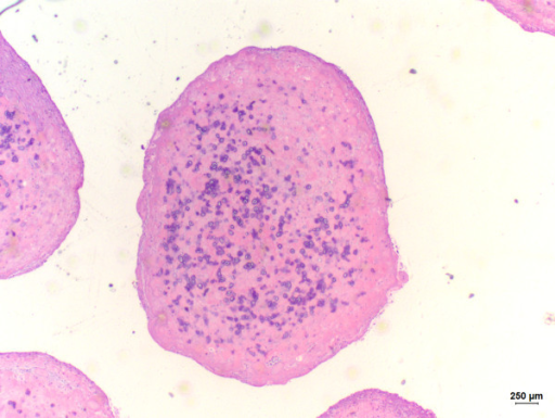 Sialolith observed within the mucocele. Hematoxylin and eosin (bar ...