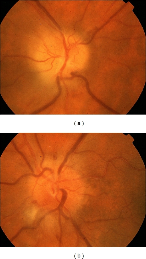 Color fundus photo of OD (a) and OS (b) with optic disc edema and peripapillary nerve fiber layer hemorrhages (a, b) and peripapillary cotton wool spots (b).