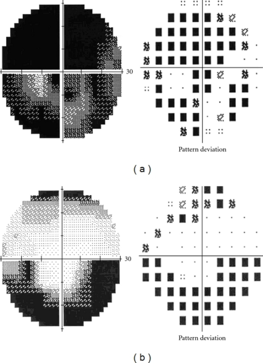 Test results of Humphrey visual field. Superior altitudinal and central defects OD (a) and inferior altitudinal defect OS (b).