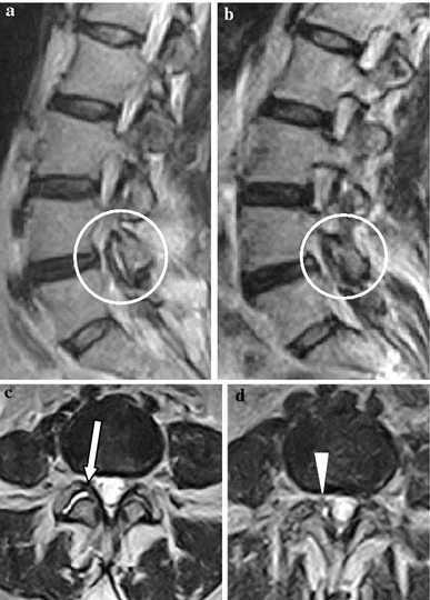 Fast spin echo (FSE) T2-weighted magnetic resonance images (MRI) in the sagittal and axial planes. a, c Clinostatism; b, d orthostasis. c Presence of a fluid collection between articular facets at L4–L5 (arrow). d Orthostatic position shows evagination of pseudocystic appearAnce of the right joint capsule with an impression on the nerve root and dural sac (arrowhead)