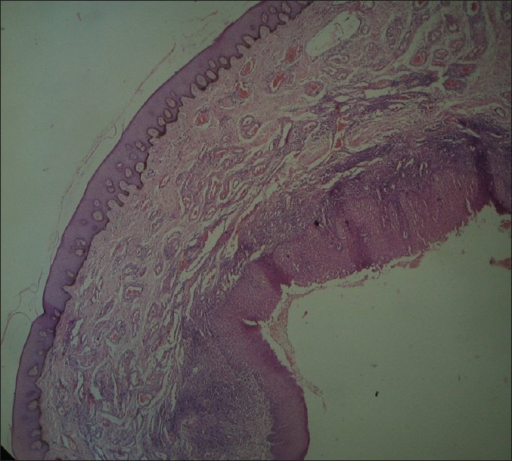 Microscopic view shows dilated, engorged blood vessels with chronic inflammatory cell infiltrate