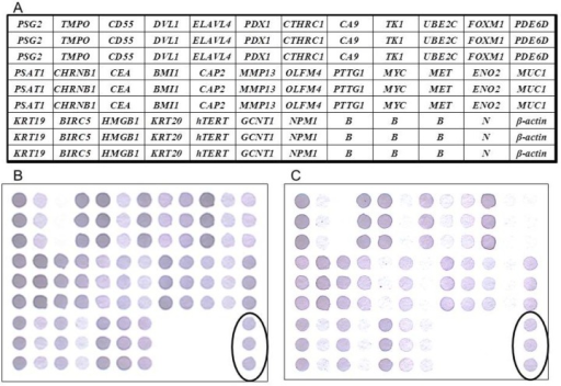 (A) The schematic representation of a weighted enzymatic chip array (WEnCA) with 31 candidate genes, one positive control (β-actin), one negative control (Oryza sativa sequence), and the blank control (dd water). Oligonucleotide fragments are blotted on membranes in triplicate. The expression levels of each gene spot were quantified then normalized based on reference gene (β-actin) density. We defined an overexpressed gene spot as occurring when the normalized spot density was 2 or more. Results of WEnCA of CRC with liver metastasis (B) and without liver metastasis (C). Circle: positive control.