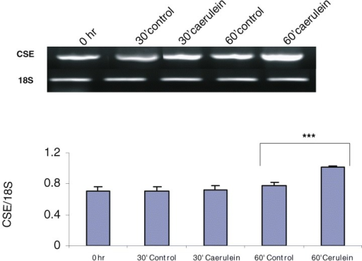 Cystathionine-γ-lyase (CSE) and cystathionine-β-synthase (CBS) mRNA expression in control and caerulein-treated mouse pancreatic acinar cells. (A) RT-PCR of CSE in control and caerulein (10−7 M for 30 and 60 min) treated acinar cells. The graphs represent the optical density of the bands of CSE generated from six independent experiments that were normalized with the expression of 18S. ***P < 0.001 when caerulein treated cells (60 min) were compared with control cells (60 min). (B) RT-PCR of CBS in control and caerulein treated acinar cells. The graphs represent the optical density of the bands of CBS generated from six independent experiments that were normalized with the expression of 18S. ***P < 0.001 when caerulein treated cells (60 min) were compared with control cells (0 hr).