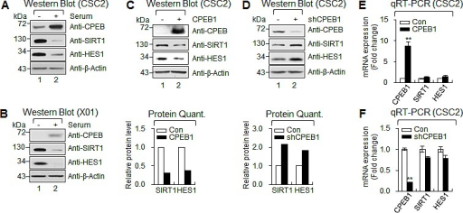 CPEB1 regulates translation of HES1 and SIRT1 mRNAs(A and B) WB of CPEB1, SIRT1 and HES1 in CSC2 (A) and X01 (B) with serum or without serum. (C and D) WB of CPEB1, SIRT1 and HES1 in CSC2 infected with CPEB1-expressing lentiviral or control construct (C) and infected with shCPEB1-expressing lentiviral or control construct (D). Expression level of SIRT1 and HES1 proteins were quantified with ImageJ software. Each protein level was normalized with that of β-Actin (loading control). (E and F) qRT-PCR of SIRT1 and HES1 in CSC2 infected with CPEB1-expressing lentiviral or control construct (E) and infected with shCPEB1-expressing lentiviral or control construct (F).