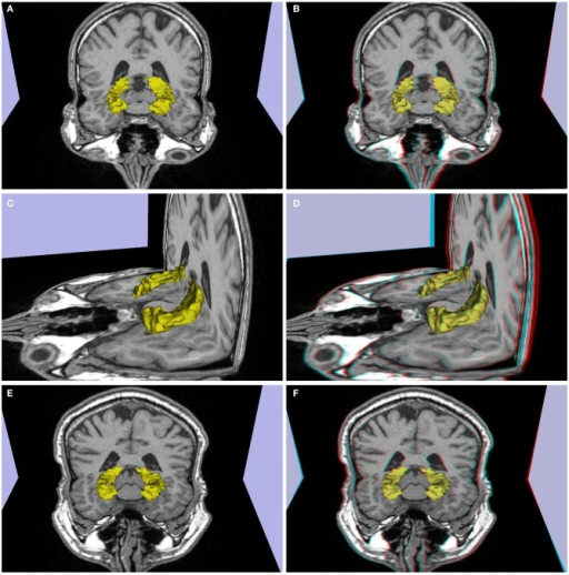 (A–D) Patient P1 (left temporal lobe refractory epilepsy, decrease in volume and signal hyperintensity of the right hippocampus consistent with mesial temporal sclerosis in a 26 year-old). (E,F) Patient P2 (single epileptic seizure, arterial hypertension, dislipidemia, 44 years old), slight decrease in right hippocampus volume. (A,C,E) 3d images, (B,D,F) stereoscopic (anaglyph) 3D version that must be viewed using red-cyan anaglyph glasses.