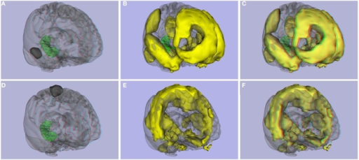 Functional connectivity atlas. (A) ROI 2 and right hippocampus, (B) 3D image, and (C) stereoscopic (anaglyph) 3D version of functional connectivity network created with ROI 2. (D) ROI 126 from the Craddock parcellation atlas and right hippocampus, (E) 3D image, and (F) stereoscopic (anaglyph) version of functional connectivity network created with ROI 126.