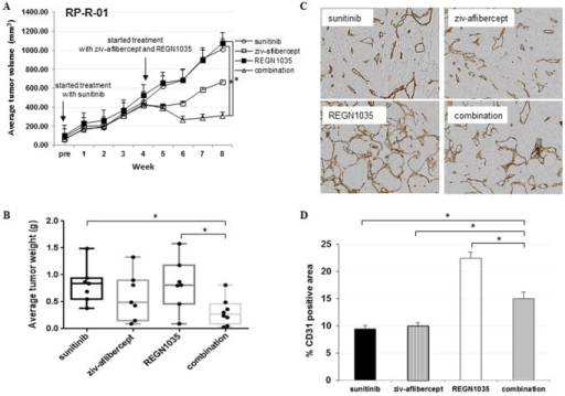 Anti-tumor efficacy of anti-Dll4 (REGN1035) and anti-VEGF (ziv-aflibercept) in a sunitinib resistant RP-R-01 ccRCC patient-derived xenograft model.Mice with established subcutaneous tumors were treated with sunitinib for 4 weeks until tumor tissue was no longer responsive to treatment (tumor volume was ∼6 times that of pretreatment volume). At which time, mice were treated with either sunitinib, ziv-aflibercept, REGN1035 or the combination of ziv-aflibercept plus REGN1035 for a period of four weeks. (A) Tumor growth curve of average tumor volume (mm3) ± S.E. (B) End point tumor weights (g). *p<0.05, as compared to combination group using adjusted t-test analysis. Effect of REGN1035 and/or anti-VEGF (ziv-aflibercept) on sunitinib resistant RP-R-01 tumor vasculature. Sunitinib resistant tumors from treated mice were harvested, processed, and tissue sections were stained for the differential expression of CD31. (C) Representative pictures. (D) Blind quantitative analysis of CD31. Results are expressed as mean percentage positive stained area ± S.E. *p<0.05, as compared to combination group using t-test analysis.