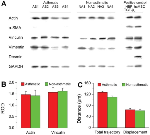 Gene expression profile and motility of AS and NA HBFs.A lack of α-SMA (myofibroblast marker) and desmin (muscle cell marker) expression in HBF samples from AS and NA groups (A) was accompanied by a lack of significant differences in the total expression of actin and vinculin between AS and NA samples, as shown by densitometric analysis (B). Human cardiac mesenchymal stromal cells (hcMSC) and TGF-β1-stimulated AS HBFs were used as positive controls for desmin and α-SMA, respectively. Relative optical density (ROD) values represent vinculin and actin levels (mean ± s.d.) calculated for each group by compilation of 4 AS and 4 NA samples, respectively, normalized against GAPDH levels. Time-lapse analyses of cell locomotion did not reveal any significant differences in the motile activity (the total length of displacement and the total length of trajectory) between AS and NA cells (C). Values are means ± s.d. for each group compiled from 4 AS and 4 NA samples, respectively. (*) P < 0.05.