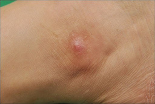 Solitary, relatively ill-defined, 1.5×1 cm-sized erythematous nodule on the right ankle.