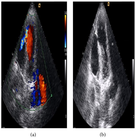 Modified apical four-chambered view in transthoracic echocardiography showing the defect (b) (marked by white arrow) and color jet (a) through it. LV: left ventricle, RV: right ventricle, RA: right atrium, and IMD: intramyocardial dissection area.