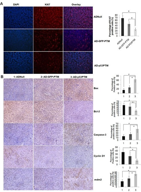 Effect of Ad-p53-PTM on the proliferation, cell cycle and apoptosis of HT-29 cells in xenograft tumorsA. Effect of Ad-p53-PTM on the proliferation of HT-29 in pre-established HT-29 xenografts. Cell proliferation was assessed by immnofluorescence staining of Ki67. B. Effects of Ad-p53-PTM on cell cycle and apoptosis in pre-established HT-29 xenografts. Indicated proteins were measured by immunohistochemistry. Representative immunohistochemical staining and the percentage of positive cells in immnostaining were shown. Positive cells were counted in tumor tissues and presented as the mean ± SD (4 random fields per section and three sections per tumor).1: AD-Null, 2: AD-GFP-PTM, 3: AD-p53PTM. * p<0.05.