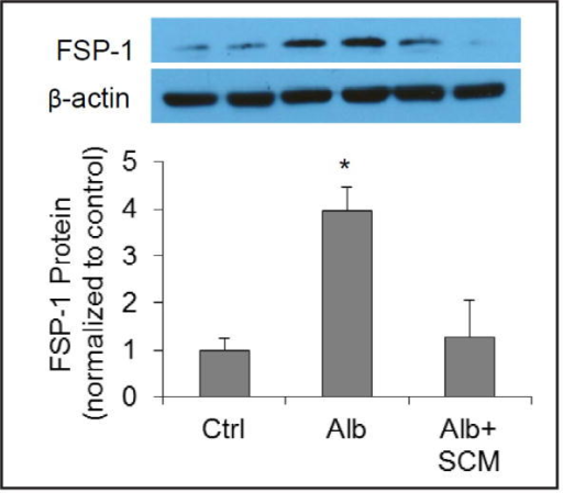 Effect of SCM on albumin-induced increase in mesenchymal marker FSP-1 by Western blot analysis. Upper panel: Representative gel documents; Lower panel: summarized data. Ctrl = control cells treated with CCM, Alb = cells treated with albumin + CCM, Alb+SCM = cells treated with albumin + SCM. n=6 batches of cells, *P<0.05 vs. other groups.