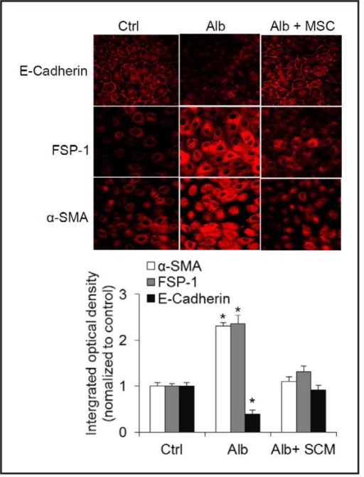 Effect of SCM on albumin-induced changes of staining patterns in E-cadherin, FSP-1 and α-SMA by immunofluorescent microscopy assay. Upper panel: Representative confocal images showing the immunostaining of E-cadherin, FSP-1 and α-SMA; Lower panel: Summarized integrated optical intensity of the fluorescent staining. Ctrl = control cells treated with CCM, Alb = cells treated with albumin + CCM, Alb+SCM = cells treated with albumin + SCM. n=5 batches of cells, *P<0.05 vs. other groups.