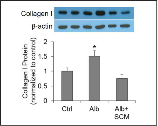 Effect of SCM on albumin-induced increase in collagen I by Western blot analysis. Upper panel: Representative gel documents; Lower panel: Summarized data. Ctrl = control cells treated with CCM, Alb = cells treated with albumin + CCM, Alb+SCM = cells treated with albumin + SCM. n=6 batches of cells, *P<0.05 vs. other groups.