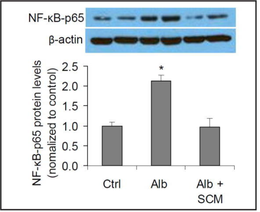 Effect of SCM on albumin-induced increase in NF-κB-p65 in nuclear proteins by Western blot analysis. Upper panel: Representative gel documents; Lower panel: Summarized data. Ctrl = control cells treated with CCM, Alb = cells treated with albumin + CCM, Alb+SCM = cells treated with albumin + SCM. n=6 batches of cells, *P<0.05 vs. other groups.
