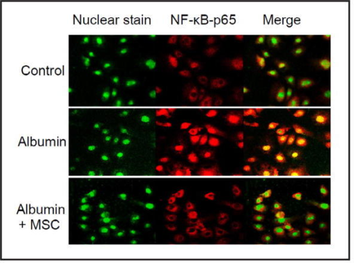 Effect of SCM on albumin-induced changes of staining patterns in NF-κB-p65 by immunofluorescent microscopy assay. Representative confocal images showing the immunostaining of nuclear marker (green) and NF-κB-p65 (red) (from 5 batches of cells). Control = control cells treated with CCM, Albumin = cells treated with albumin + CCM, Albumin+SCM = cells treated with albumin + SCM.