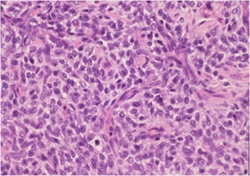 Microscopic pathological analysis. Small oval cells arranged in nests or cords are separated by fibrovascular septa. Plump or spindle-shaped cells contain clear cytoplasm