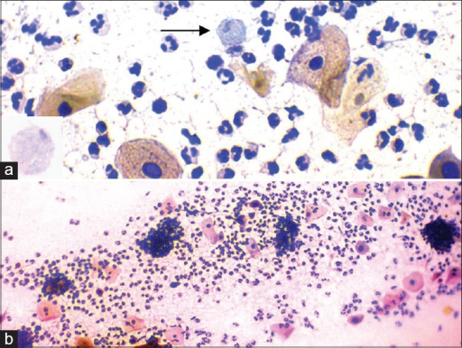 (a) Pear-shaped trichomonas organism in between the squamous cells (Papanicolaou stain, ×400) (a Inset). Trichomonas showing intracytoplasmic granules (Papanicolaou stain, ×1000). (b) Cannon balls with neutrophils adhering to the squamous cells (Papanicolaou stain, ×100)