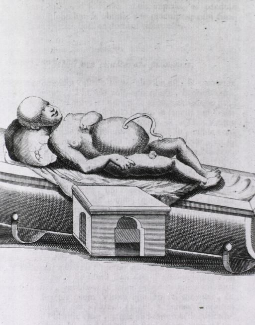 <p>Infant with enlarged head and abdomen.</p>