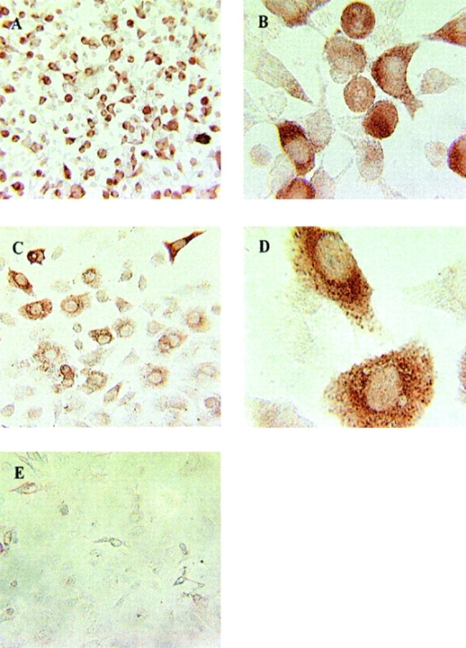 Cyclin B1 protein is overexpressed in epithelial tumor cells. (A) MS-A2 cells, original magnification, ×20. (B) MS-A2 cells, original magnification, ×40. (C) 201T cells, original magnification, ×20. (D) 201T cells, original magnification, ×40. (E) Human airway bronchoepithelial cells, original magnification, ×20.