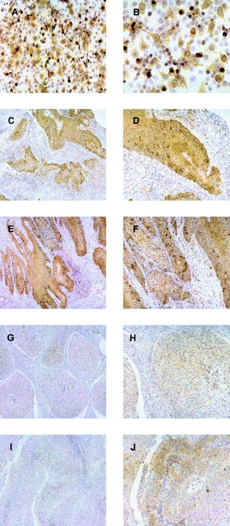 Cyclin B1 protein is overexpressed in SCCHN. A and B, SCCHN cell Line PCI-13. C–J, SCCHN tumor sections. A, C, E, G, and I, original magnification, ×10. B, D, F, H, and J, original magnification, ×20.