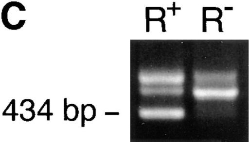 Identification of rosetting PfEMP1. (A) Rosetting, single P. falciparum–infected erythrocyte is seen by light microscopy held by a 5-μm micropipette (A, 1). The uninfected erythrocytes are stripped of the infected  cell and careful examination confirms that it indeed is infected by a single parasite (A, 2–3). B shows the amplification of a 434-bp band in four (from reactions 3, 4, 5, and 7) out of eight single-infected, rosetting erythrocytes using  degenerate primers generated from the primary sequence of the DBL-1 domain of PfEMP1. C shows the amplification pattern with the same primers as  in B of bulk cultures of rosetting (R+) FCR3S1.2 cultures and the R−  FCR3s/a parasites. Note that the 434-bp product is only seen with the R+  parasites. D shows the hybridization pattern in Northern blotting of the 434-bp sequence to mRNA extracted from the highly rosetting parasite  FCR3S1.2 (84% R+) and the weak hybridization to the R− FCR3S/a parasite (9% R+). E shows the autoradiogarph of a Triton X-100 insoluble, SDS-soluble extract of FCR3S1.2-infected erythrocytes after radio-iodination labeling. PfEMP1 (arrow) is labeled on FCR3S1.2-infected erythrocytes and is  cleaved by low concentrations of trypsin.