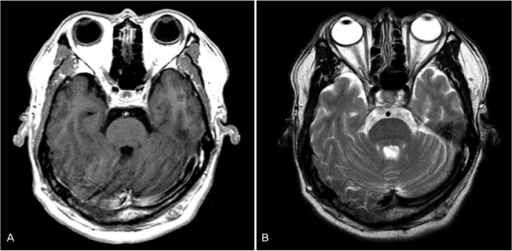 Magnetic Resonance Imaging The Eyeball Size And Scleral Thickness Are Normal In Both Eyes