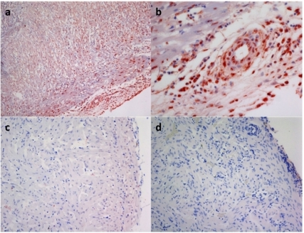 Pone 0011487 g004 heart and skeletal muscle inflammation for Piscine reovirus