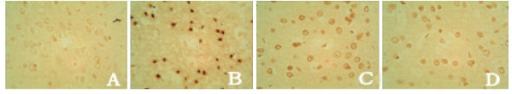 NFκB expression in cortex shown by SABC × 400 (A. SO group, B. IC group, C. SA group, D. PT group).