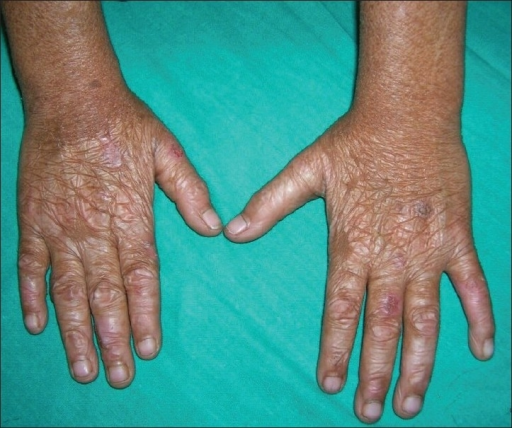 Lymphocytic infiltration of the skin (morbus Jessner)