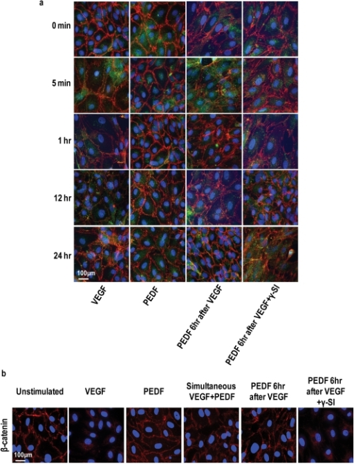 PEDF prevents VEGF-induced dissociation of endothelial AJs and TJs.Representative immunofluorescent images of confluent cultures of microvascular endothelial cells treated with vehicle (unstimulated), VEGFA alone, PEDF alone, simultaneous VEGFA+PEDF, PEDF 6 hours post VEGF and PEDF 6 hours post VEGF+γ-secretase inhibitor (γ-SI) (n = 4 independent experiments). VEGFA and PEDF were used at 100 ng/ml and γ-secretase inhibitor at 1 nM. (a) Cultures were triple stained for VE-cadherin (red), claudin-5 (green) and nuclei (DAPI, blue) and assessed at different times over 24 hours using confocal microscopy. Merged images are shown with colocalization of VE-cadherin and claudin-5 appearing as yellow. (b) The effect of PEDF on β-catenin using the conditions described in (A) (n = 4). Scale bar = 100 µm.