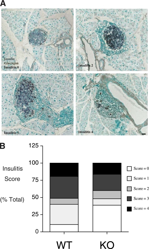 Insulitis in normoglycemic wild-type and G6pc2-deficient NOD/ShiLtJ mice. Paraffin sections of pancreata removed from 25-week-old normoglycemic male animals were stained by immunoperoxidase methods for the presence of insulin (gray) and glucagon (brown). Varying degrees of peri-islet mononuclear cell infiltration were evident, as visualized by the methyl green counter stain. Representative images (scale bar = 50 μm) are shown in A, whereas insulitis scores from five wild-type and five NOD/ShiLtJ G6pc2−/− mice are shown in B, based on the examination of a total of 127 wild-type and 151 G6pc2−/− islets. KO, knockout; WT, wild-type. (A high-quality digital representation of this figure is available in the online issue.)
