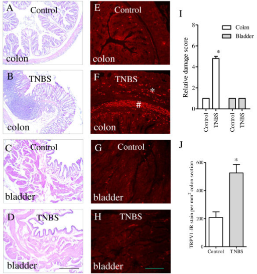 Histologic changes and TRPV1 immunoreactivity in the distal colon and the urinary bladder during colonic inflammation. TNBS treatment resulted in inflammatory response of the distal colon (A-B) and increased immunoreactivity of TRPV1 in the distal colon (E-F). Colonic inflammation was not accompanied by bladder inflammation (C-D), or changes in the TRPV1 immunoreactivity in the urinary bladder (G-H). Four independent experiments showed consistent results. Quantification of the results were shown in I and J. Bar = 300 μm in A-D; Bar = 50 μm in E-H. *, p < 0.05.