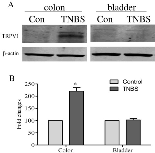 Western blot of TRPV1 in the distal colon and the urinary bladder. Western blot results showed that TNBS treatment increased the protein level of TRPV1 in the distal colon by 2-fold (A and B, colon). The level of TRPV1 was not changed in the urinary bladder post TNBS treatment (A and B, bladder). *, p < 0.05. n = 5 for each experimental group.