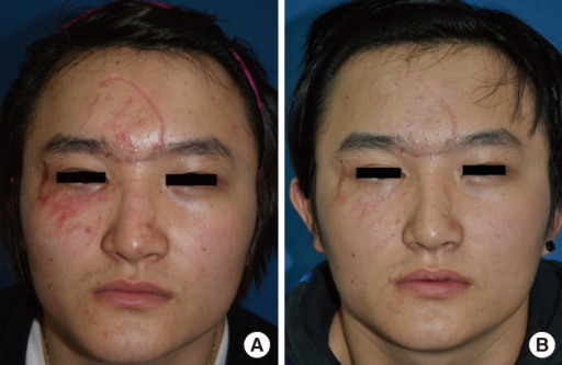 Multiple facial lacerations