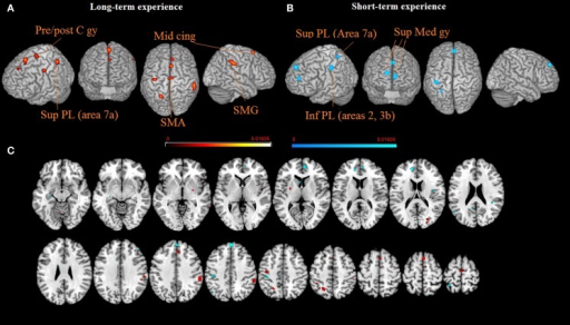 The brain networks supporting long-term (A) and short-term (B) meditation experience are displayed on a rendered template brain provided by spm5 and on axial slices of the MNI single subject template, with long-term (orange) and short-term (blue) meditation experience related activations overlaid on the same template (C). All activations are significant at p < 0.05 corrected for multiple comparisons using the false discovery rate (FDR). Color bas show ALE value.