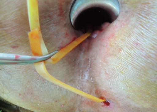 Why use a seton stitch for anal fistula