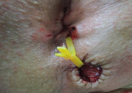 How to avoid masturbation