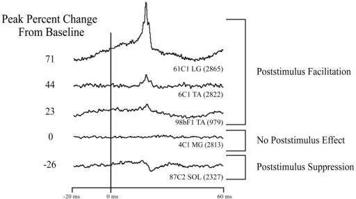 Types of effects observed in stimulus triggered averages of ankle muscle EMG activity. Column on left: magnitude of the primary poststimulus facilitation (PStF) or poststimulus suppression (PStS) measured as peak percent change from baseline EMG value just before the onset of the effect. Stimulation at 60 μA and 15 Hz repetition rate.
