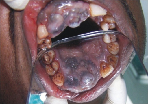 Preoperative palatal view