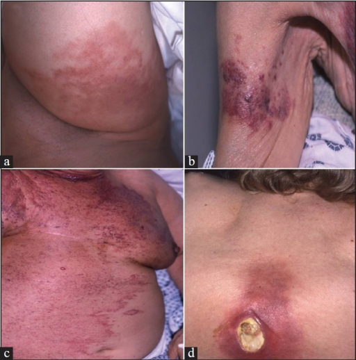 "(a) Cellulitis-like appearance of metastatic breast cancer.(b) Plaque-like area with multiple nodules from a primary breast cancer. (c) Massive recurrence of breast cancer on the chest wall and abdomen of the ""en cuirasse"" type. (d) Breast cancer, metastatic to the thoracic spine with extension to the skin, and lceration secondary to radiation therapy"