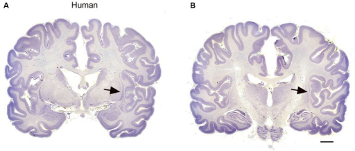 (A, B) The claustrum in the human brain. The claustrum is shown on two coronal sections through the human brain about 17 mm apart. A is the more rostral. The arrows show the claustrum, which is quite small relative to the total size of the section. The images were downloaded from http://www.brains.rad.msu.edu and, http://brainmuseum.org sites supported by the US National Science Foundation, and used with permission. The brain had been embedded in celloidin and sectioned at 35 μm. Scale bar = 10 mm.