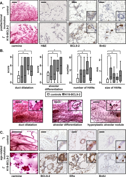 In vivo overexpression of BCL9-2 delays the postlactational and age-related involution and induces preneoplastic changes of the mammary gland in mice(A) Carmine stains and immunohistochemistry with the indicated antibodies of representative mammary glands of four month old non-transgenic and BCL9-2 females after pregnancy. Shown are mammary tissues on day 10 of involution. (B) Box-Plot analyses of the scoring (upper panel) and representative carmine stains (lower panel) for the indicated preneoplastic changes in the aged mammary gland. Age-matched non-transgenic (white bars) and BCL9-2 virgin females from four different founder lines (grey bars) were analyzed at 22.0 ± 2.0 month of age. Each group represents at least six animals. The asterisk marks significant differences with P<.05. (C) Representative stains of mammary glands from age-matched, 20 month old non-transgenic and BCL9-2 virgin females. Scale bars in the pictures represent 2 mm for carmine stains, 200 μm for H&E, and 50 μm for IHC. Inserts show the staining at higher magnification.