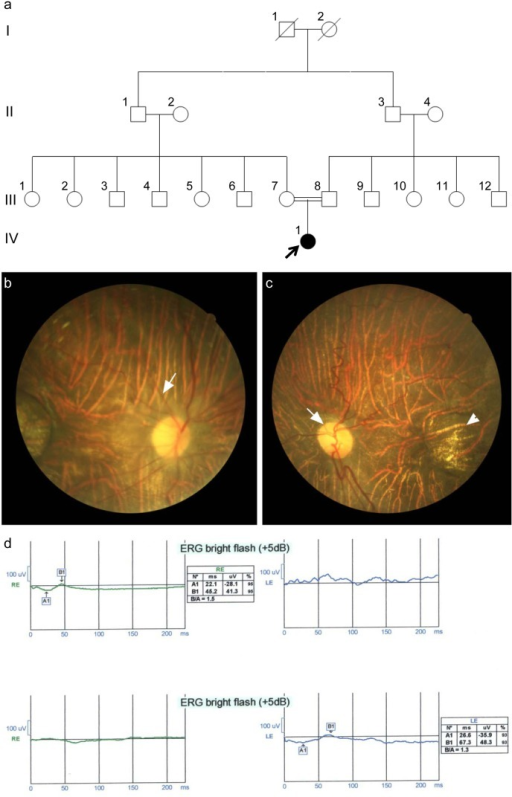 a. Pedigree of a consanguineous family initially diagnosed with chorioretinal degeneration and high myopia (in some family members). b. Color fundus photo OD shows the diffuse chorioretinal atrophy (white arrow points to the arterial narrowing). c. Color fundus photo OS showing the waxy optic disc (white arrow) and the well-circumscribed macular atrophic lesion (arrowhead). d. Flash ERG OU demonstrates severely diminished amplitudes of the a and b waves.