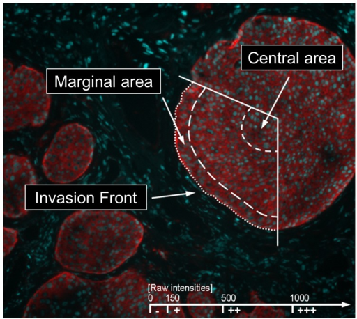 Non-dimensional raw intensities for Rhodamine Red-X (RRX) fluorescence were measured in at least three low power fields (100fold magnification) representative for each tissue section in three different areas of the tumor cell formations: Invasion front, marginal areas, and central areas.Predominant raw intensity values were classified below 150 as negative (−), from 150 to 500 as weak (+), from 500 to 1000 as moderate (++), and above 1000 as strong (+++) expression of the respective integrin subunit.