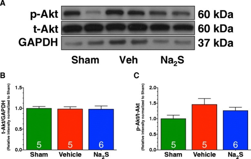 Na2S therapy did not activate Akt following MI/R. (A) Representative immunoblots and densitometric analysis of the expression of (B) phosphorylated Akt at Serine residue 473, and (C) total Akt. Experiments were conducted with heart homogenates collected from Sham, Vehicle, and Na2S-treated mice following 30 minutes of ischemia and 4 hours of reperfusion. Values are mean ± SEM.