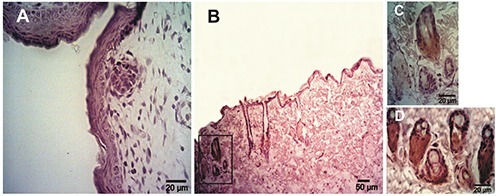 Expression of Muc1 determinates using immunohistochemistry in rat skin samples of embryos and adults. A) Epidermis at 20 days of gestation showing a negative reaction. B) Adult skin; the reaction was restricted to the sebaceous glands. C) Magnification of the box in panel B. D) Sebaceous glands of adult skin showing a high Muc1 expression.